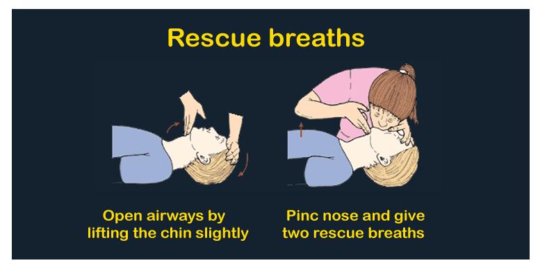 CPR-Definition