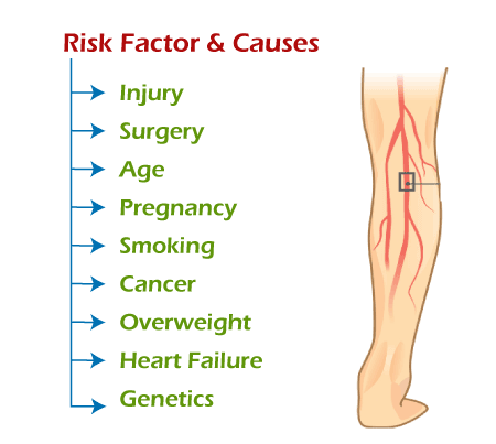 What is DVT