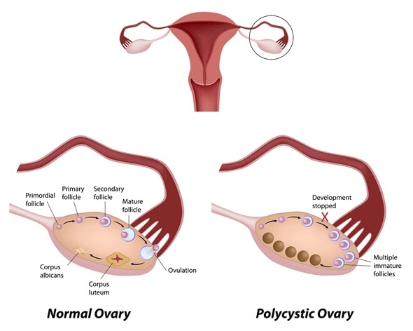 PCOD - Polycystic Ovarian Disease